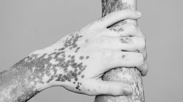 Redwood Family Dermatology - Xtrac Excimer Laser for treatment of psoriasis and vitiligo